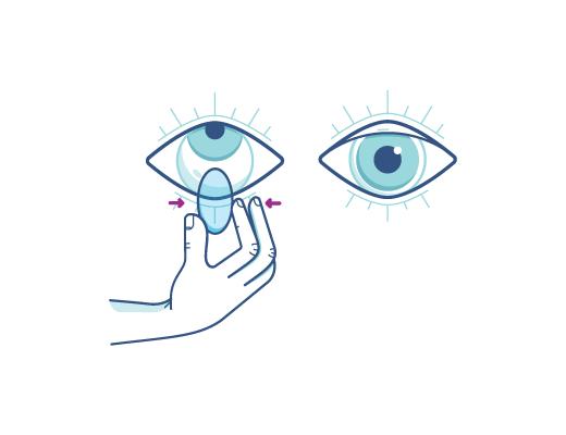 Gentilmente pince a lente e remova as lentes de contato