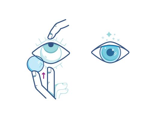 Tente seguir a técnica de olhar para cima para colocar as lentes de contato