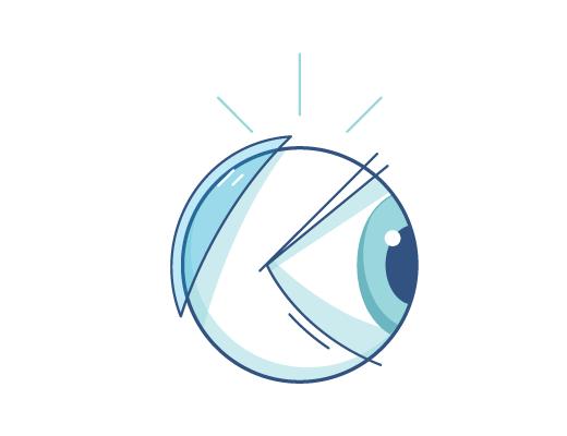 Ilustração de uma lente de contato na parte de trás do globo ocular