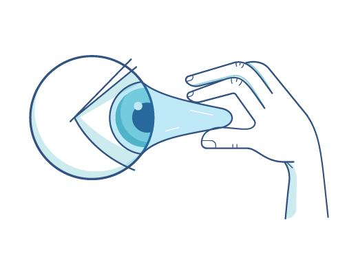Ilustração de uma lente de contato sendo retirada do globo ocular